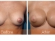 breast-augmentation-rjc-010