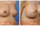 breast-augmentation-rjc-018
