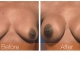 breast-augmentation-rjc-023