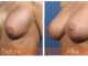 breast-repair4obl