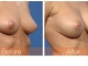 breast-augmentation-rjc-020
