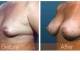 breast-augmentation-rjc-015