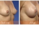 breast-augmentation-rjc-035