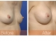 breast-augmentation-rjc-033