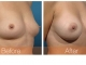 breast-augmentation-rjc-009