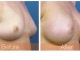 breast-augmentation-rjc-022